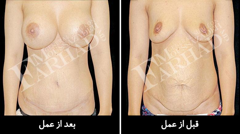 trans-abdominal-breast-augmentation-1
