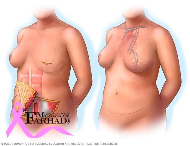 انکوپلاستی و بازسازی پستان