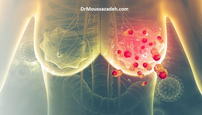 بیماری های پستان و شیوع کرونا