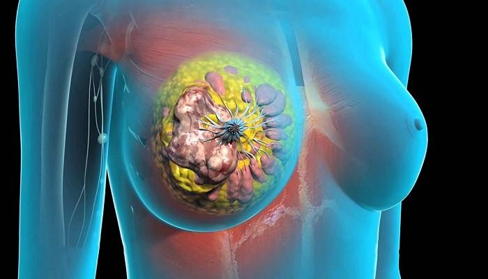 سرطان پستان ارثی