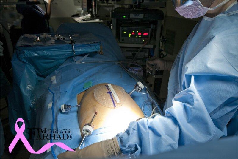 جراحی هرنی