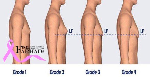 پیشگیری درمان بزرگی پستان در آقایان یا ژنیکوماستی
