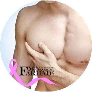 ژنیکوماستی یا بطرگی پستان در آقایان