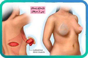 بازسازی پستان پس از سرطان پستان