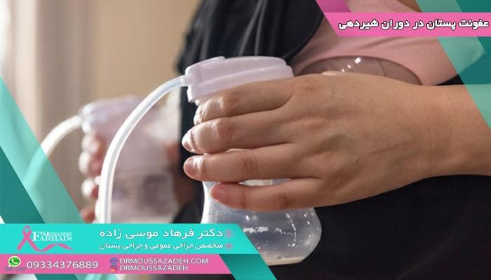 عفونت پستان در دوران شیردهی