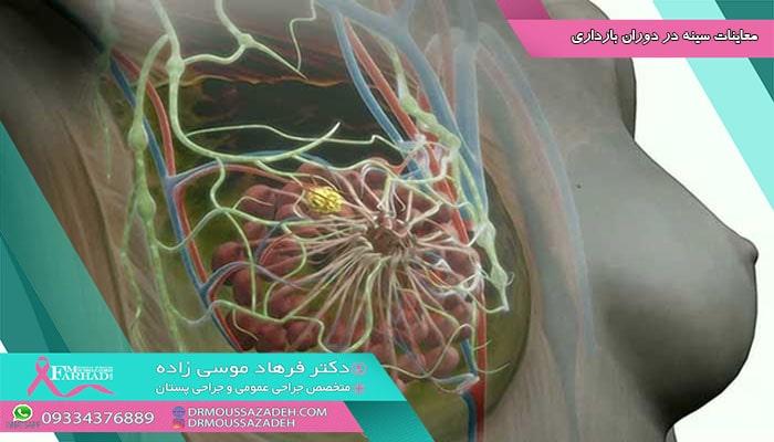 معاینات سینه در دوران بارداری