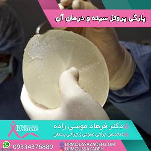 پارگی پروتز سینه و روشهای درمان آن