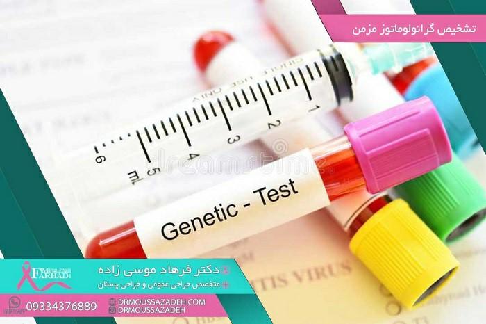 تشخیص گرانولوماتوز مزمن