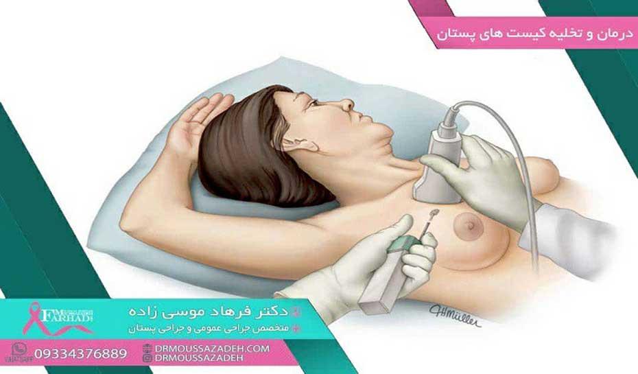 روش-های-درمان-کیست-پستان-