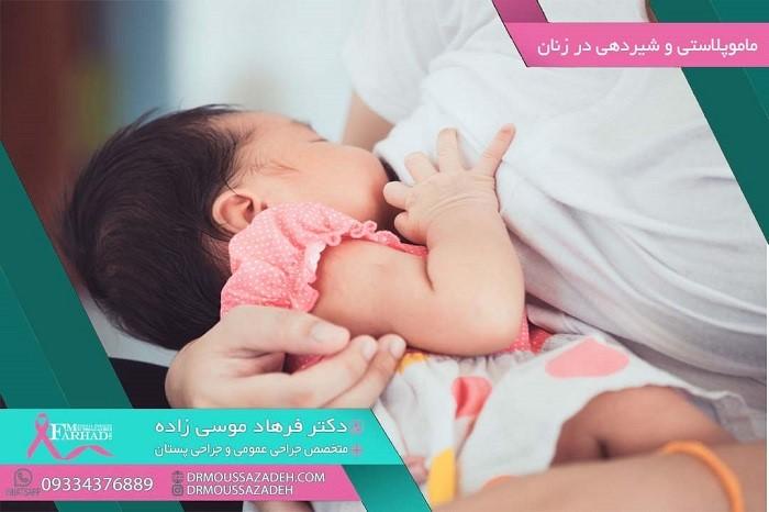 شیردهی بعد از عمل ماموپلاستی