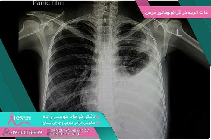 علائم بیماری گرانولوماتوز مزمن