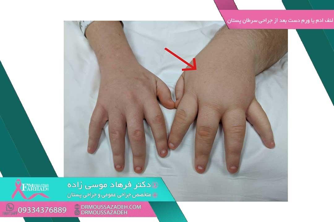 لنف ادم یا ورم دست بعد از جراحی سرطان پستان