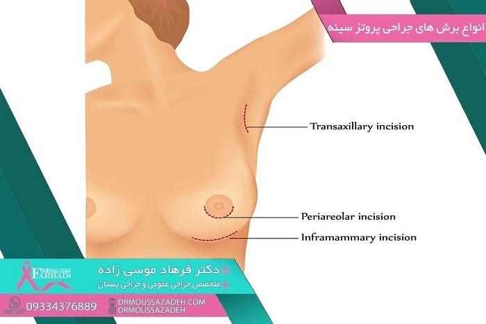 عمل جراحی ماموپلاستی