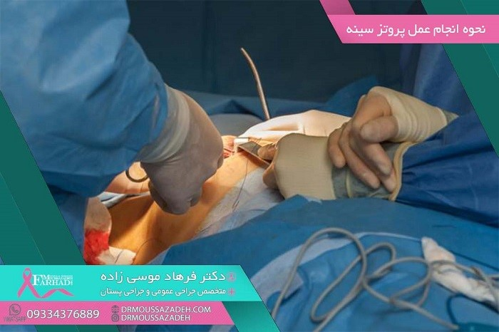 عمل پروتز سینه چگونه انجام می شود؟