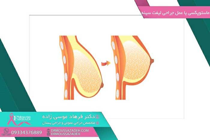 ماستوپکسی-یا-جراحی-لیفت-سینه