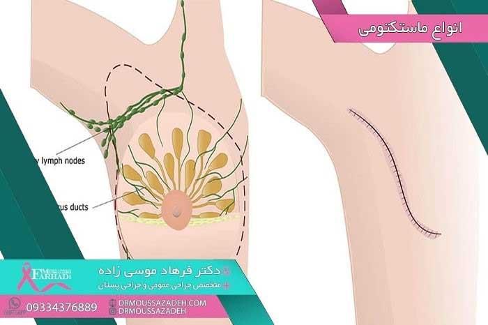 ماستکتومی-برای-درمان-سرطان-پستان