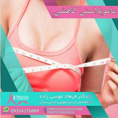 ماموپلاستی-کاهشی-یا-عمل-کوچک-کردن-سینه