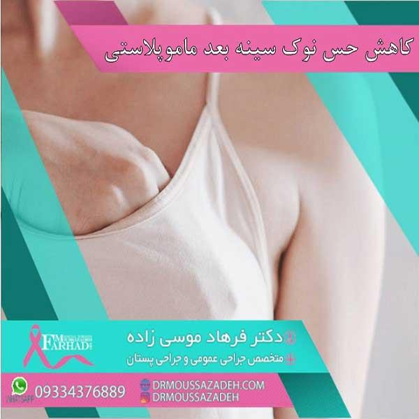 کاهش-حس-در-نوک-سینه-بعد-از-عمل-ماموپلاستی