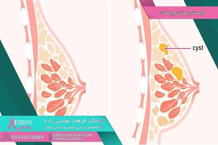 کیست-پستان-چیست