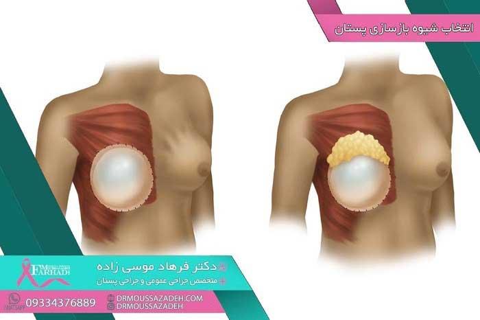 انتخاب-روش-عمل-بازسازی-پستان