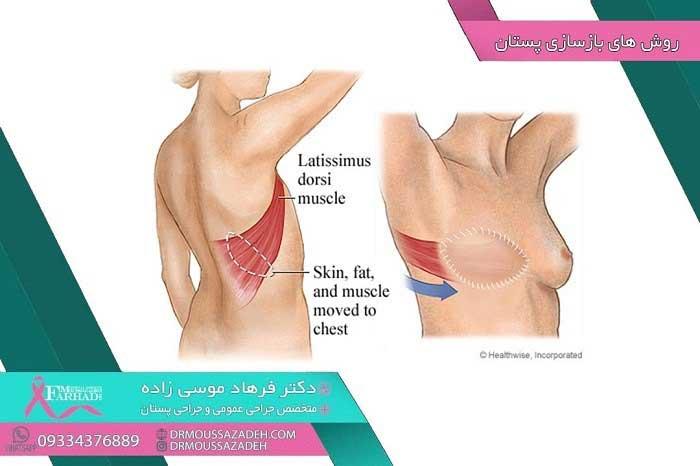 بازسازی-پستان-با-کمک-بافت-های-دیگر-بدن