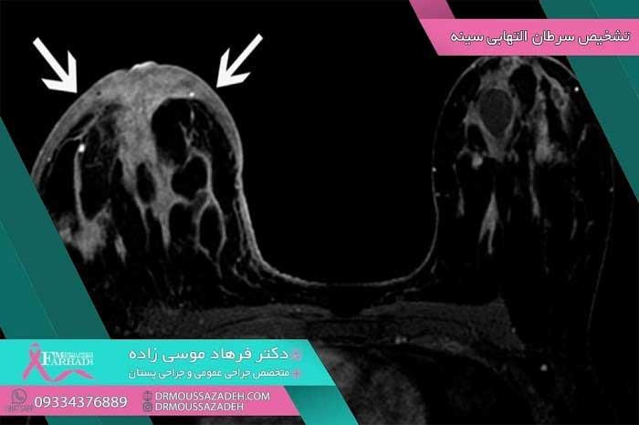 تشخیص-سرطان-التهابی-پستان