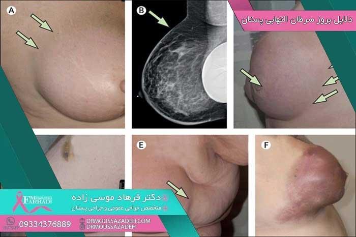 دلایل-ابتلا-به-سرطان-التهابی-پستان