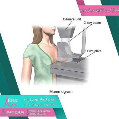 ماموگرافی-تشخیص-سرطان-پستان