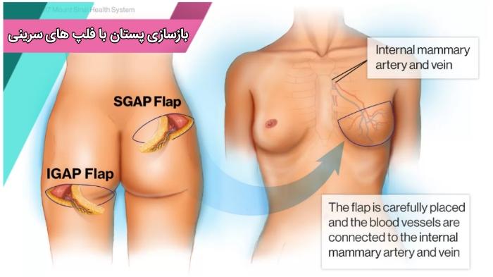 بازسازی پستان با فلپ گلوتئال