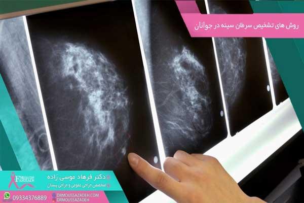 روش-های-تشخیص-سرطان-سینه-در-جوانان
