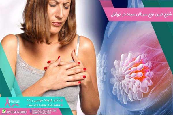 شایع-ترین-نوع-سرطان-پستان-در-جوانان