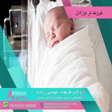 تیروئید در نوزادان