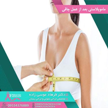 ماموپلاستی-بعد-از-عمل-چاقی