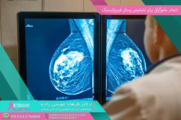 انجام-ماموگرافی-برای-تشخیص-پستان-فیبروکیستیک-