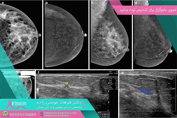 انجام-ماموگرافی-به-دستور-پزشک
